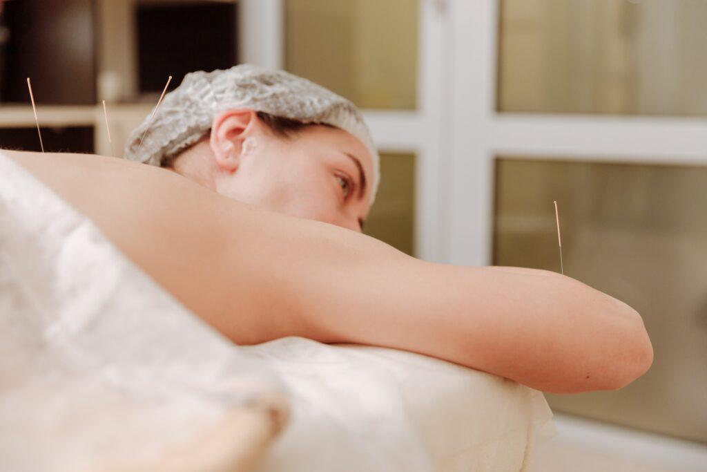 Eine Frau während einer Akupunktur Behandlung